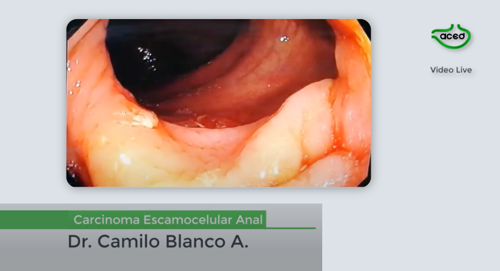 Carcinoma escamocelular de Canal Anal – Dr. Camilo Blanco