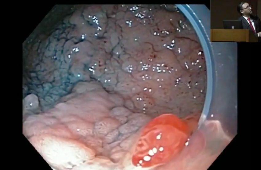 Tumor de extension lateral de recto bajo con hemorroides – Dr. Fabian Emura