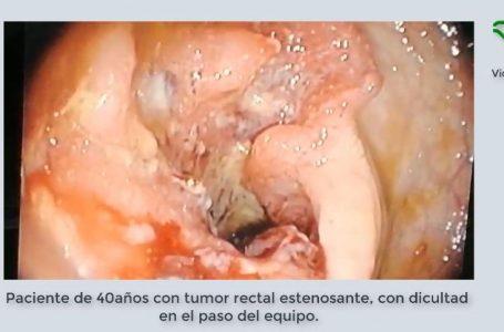 Carcinoma estenosante Rectal