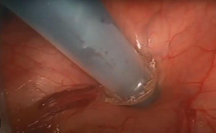 Resección Endogástrica  de Lesiones Subcardiales. Técnica Colaborativa Endoscópica – Laparoscópica.  Dr . Andrés Muñoz.