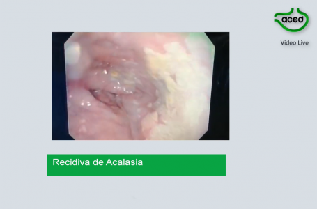 Acalasia Recidivante. Dr. Camilo Blanco A.