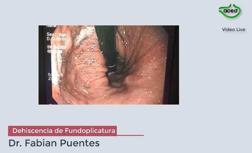 Dehiscencia de Fundoplicatura de Nissen. Dr. Fabian Puentes.